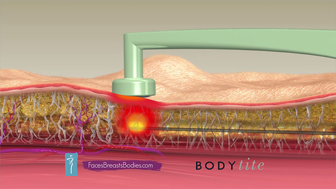 Plastic Surgery Center of Hampton Roads – BodyTite